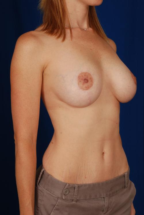Aubrey Breast Lift Before And After Small Breasts