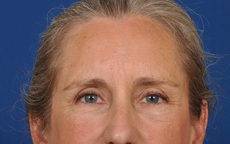 eyelid surgery photos before and after