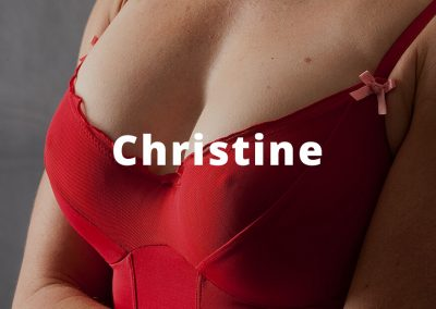 christine Breast Augmentation Before and After