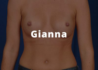 Gianna Breast Aug Pics