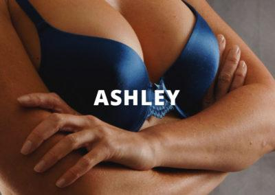 Ashley Breast Augmentation Pictures