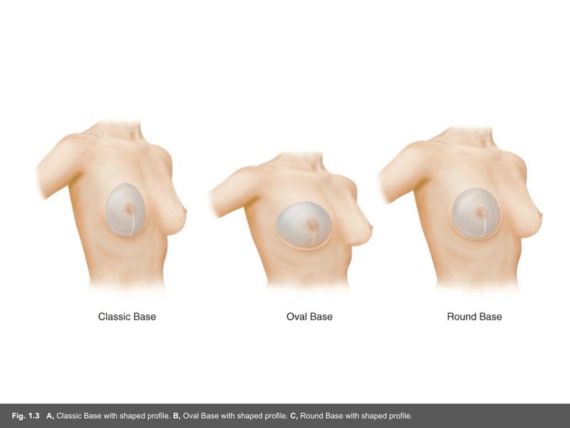 5th generation silicone gel breast