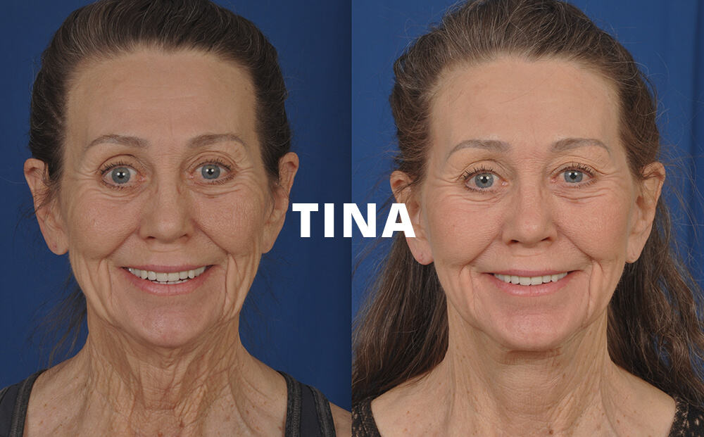 Tina Before and After Facelift Surgery
