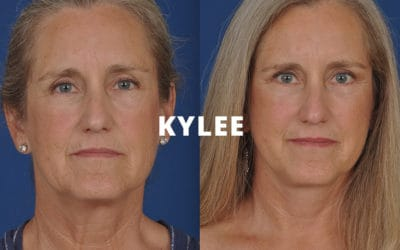 Kylee rhinoplasty before and after photos