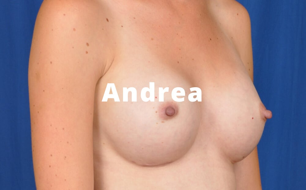 Andrea Tear Shaped Breast Implants