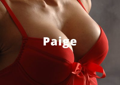 Paige Breast Augmentation Surgery