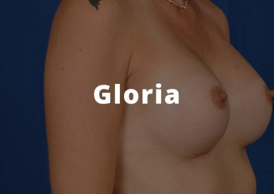 Gloria Breast Augmentation Before and After Photos