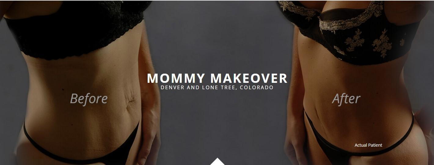 mommy makeover denver