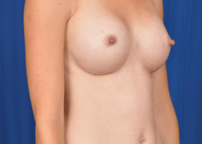 teardrop shaped breast implants before and after pics