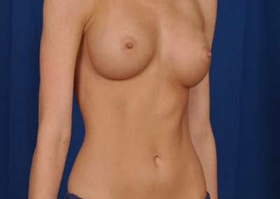 teardrop implants before and after images