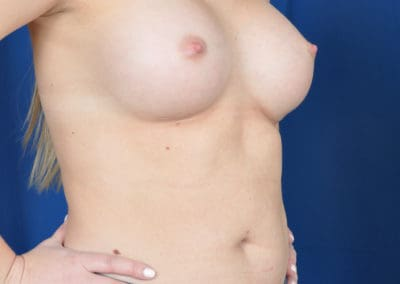 teardrop breast implants photos