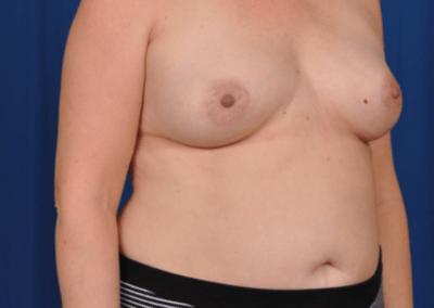 teardrop breast implants pictures