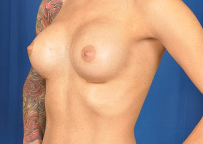 teardrop breast augmentation before and after images