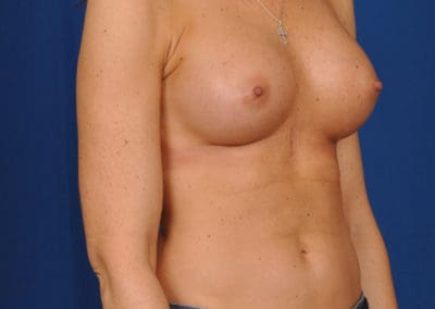 teardrop implants before and after