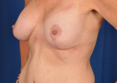 Cara Breast Lift Before And After Images