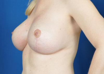 Faye Breast Lift Before And After Photos