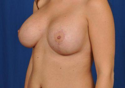 Willow Breast Lift Before And After Pictures