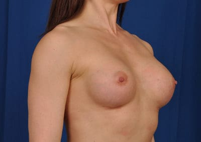 teardrop shaped breast implants