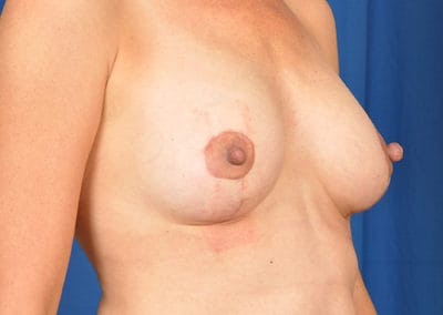 Morgan Breast Lift Before And After Photos