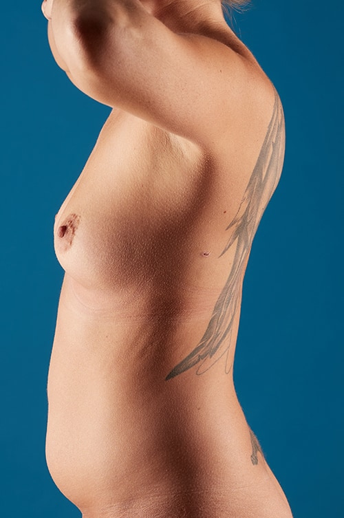 Crystal Before Breast Augmentation with Sientra 370 cc Textured