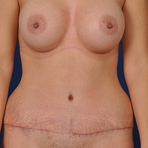 Naomi After Breast Augmentation with Mentor 450cc and Tummy tuck (Abdominoplasty) with low transverse incision