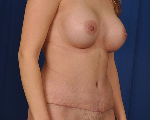 Naomi Breast Augmentation with Mentor 450cc High Profile Smooth Round High Cohesive Silicone Gel Breast Implants