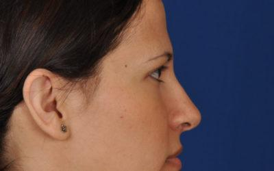 Shea rhinoplasty before and after gallery