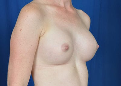teardrop breast implants results