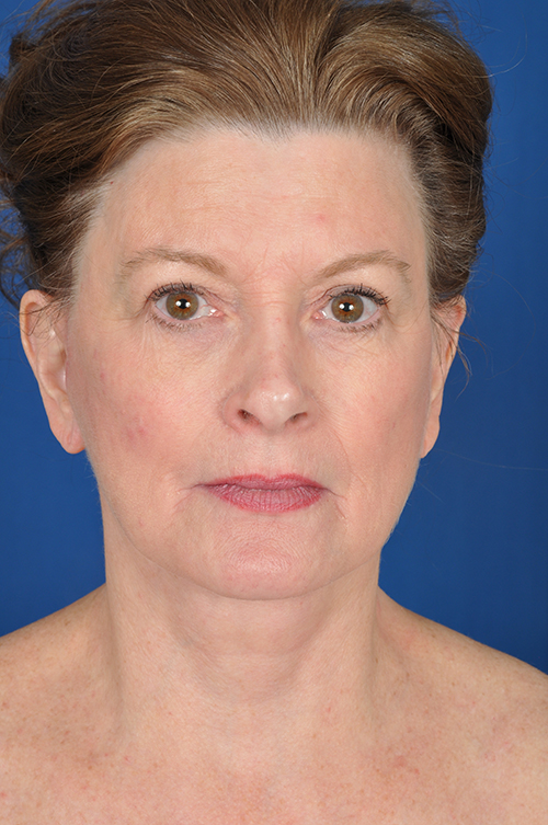 Rebecca After Face Neck Lift Surgery