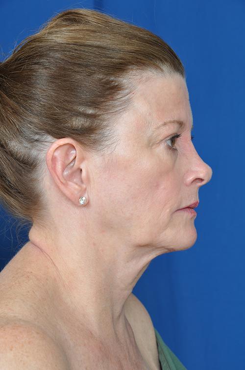 Rebecca Before Face Neck Lift Surgery Photos