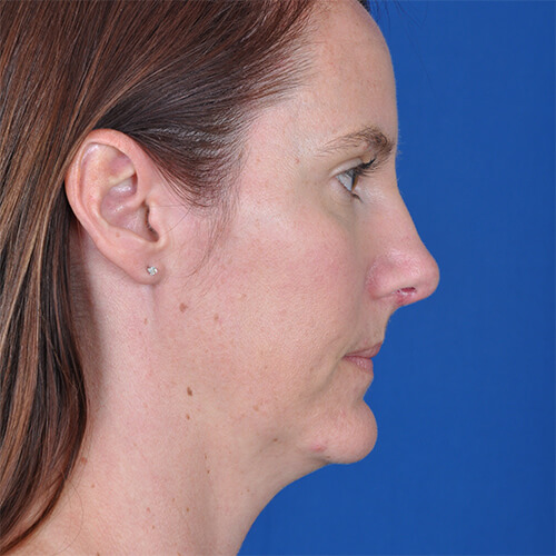Sage after Open Septo rhinoplasty surgery