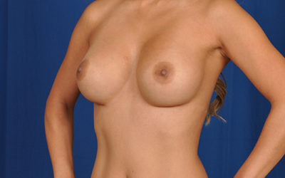 Yuliana After Breast Aug