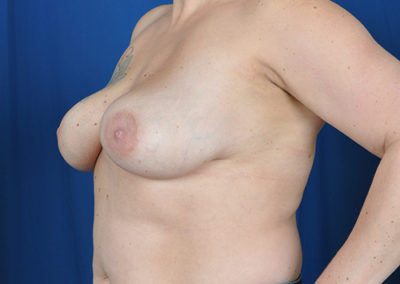 sharon breast implant removal